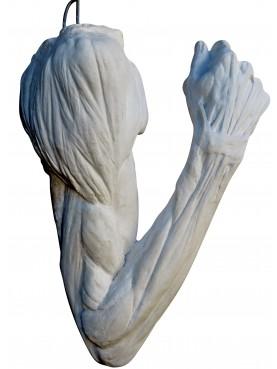 Flayed arms by Edouard Lanteri